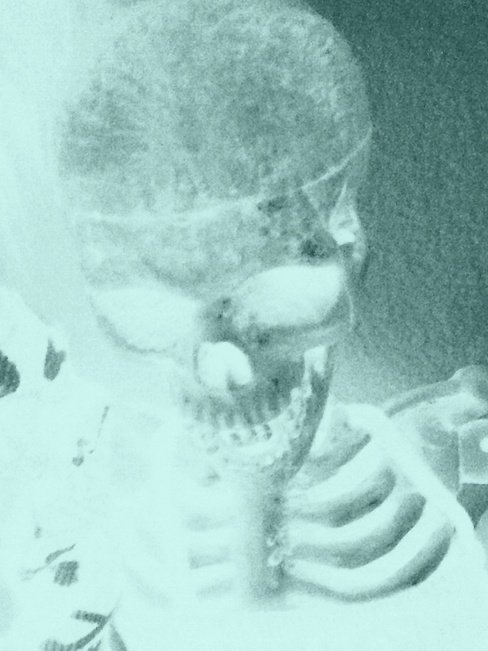 This was a photo taken of a skeleton using Apple's PhotoBooth standard app with the Xray style chosen