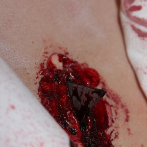 Close-up of chest wound