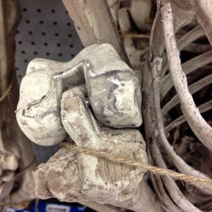 RITE AID, 2013. New skelly knee joint