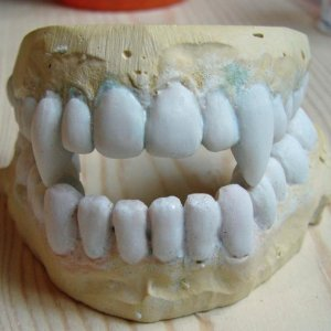 Teeth with acrylic applied (several layers).